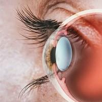 眼角膜地形圖分析